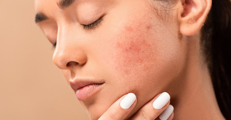 acne skin treatment for you