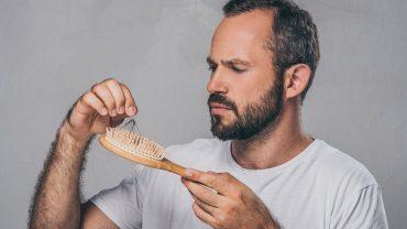 hair loss as younger man